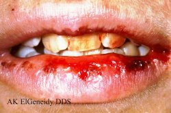 Bleeding in the Mouth